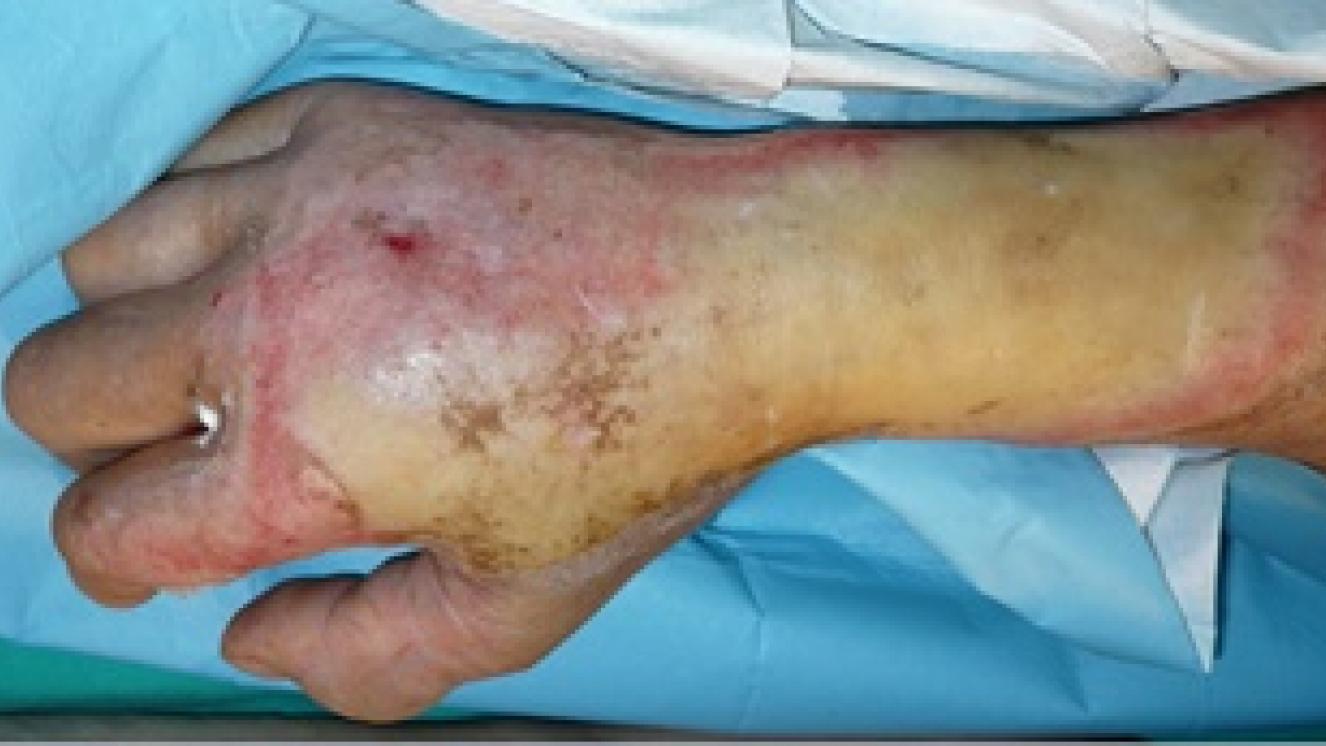 Cómo tratar quemaduras I | Hospital Universitario de Getafe