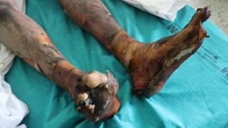Cómo tratar quemaduras II | Hospital Universitario de Getafe