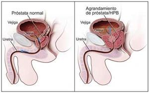 cáncer de próstata de segunda etapa de hoy