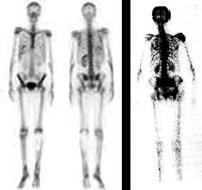 cancer de prostata y dolor de huesos