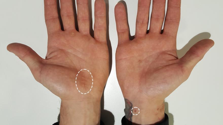 Comparativa de cicatrices entre cirugía convencional y cirugía ecoguiada