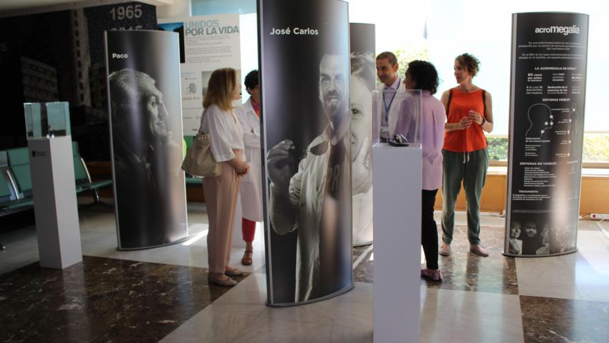 Detalle de la exposición sobre acromegalia