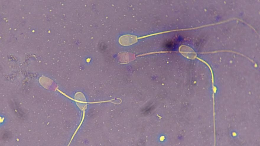 Espermatozoides vistos al microscopio