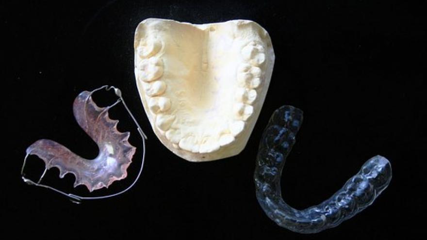 Soportes y molde de ortodoncia