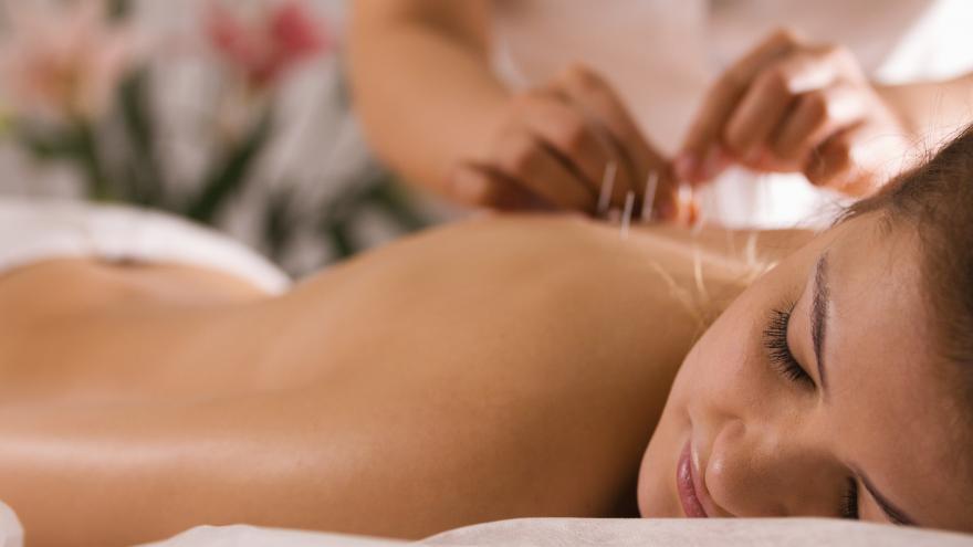 terapias acupuntura