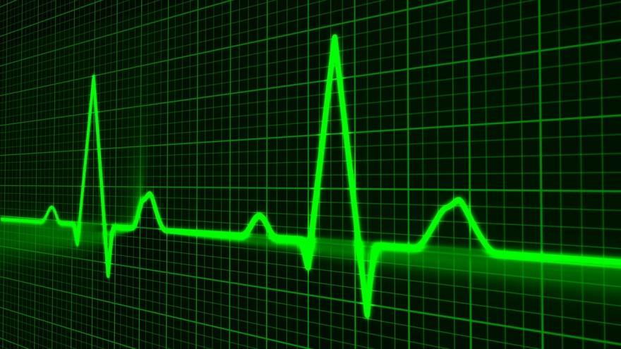 registro de Electrocardiograma
