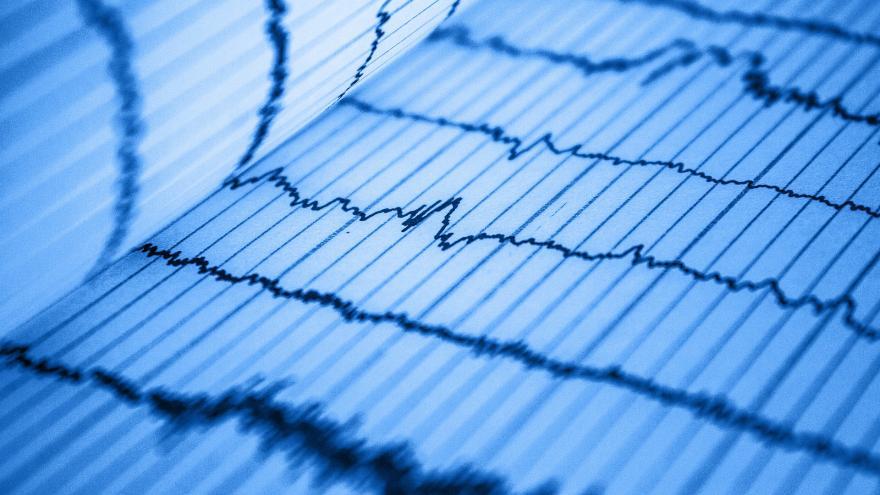 grafica electrocardiograma