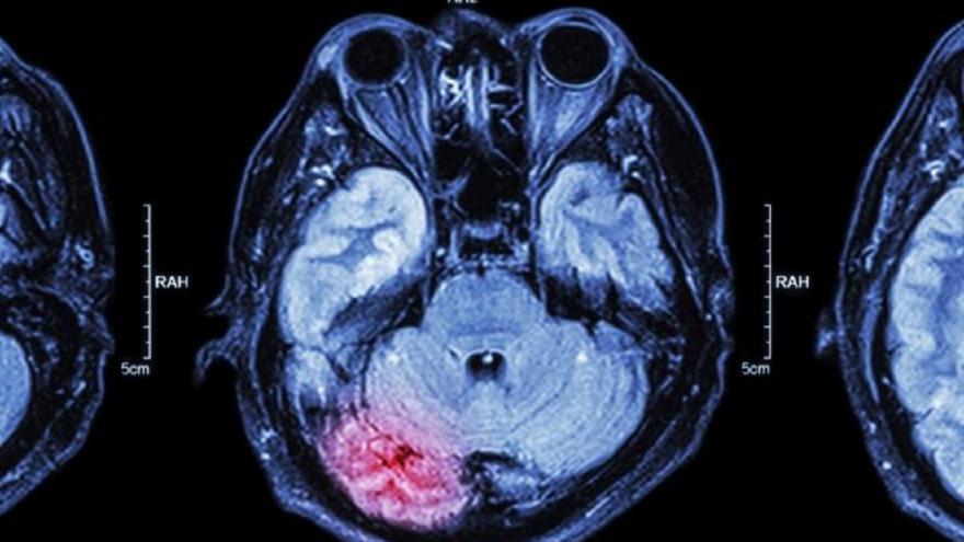Imagen de escaner cerebral