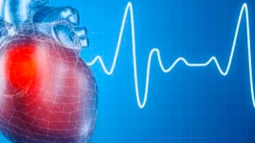 Curso XXVI de diagnóstico y tratamiento de las arritmias cardiacas. Nivel avanzando.