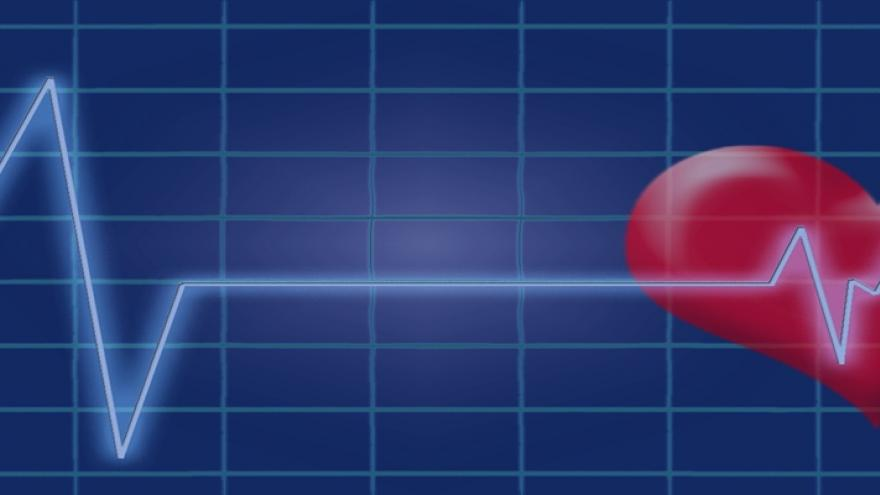 imagen electrocardiograma