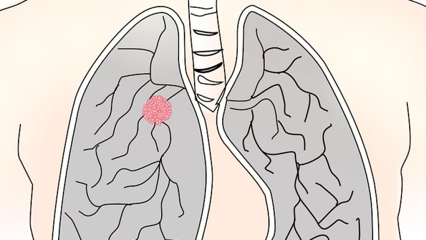 Imagen icónica de posibles efectos de la enfermedad