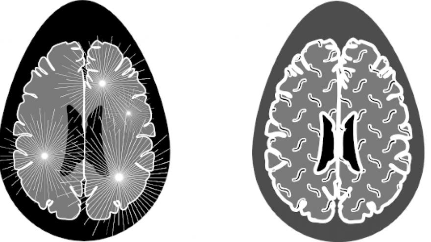 Imagen icónica de un cerebro con esclerósis múltiple