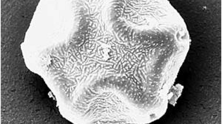 Imagen de grano de polen Alnus (aliso) al microscopio electrónico