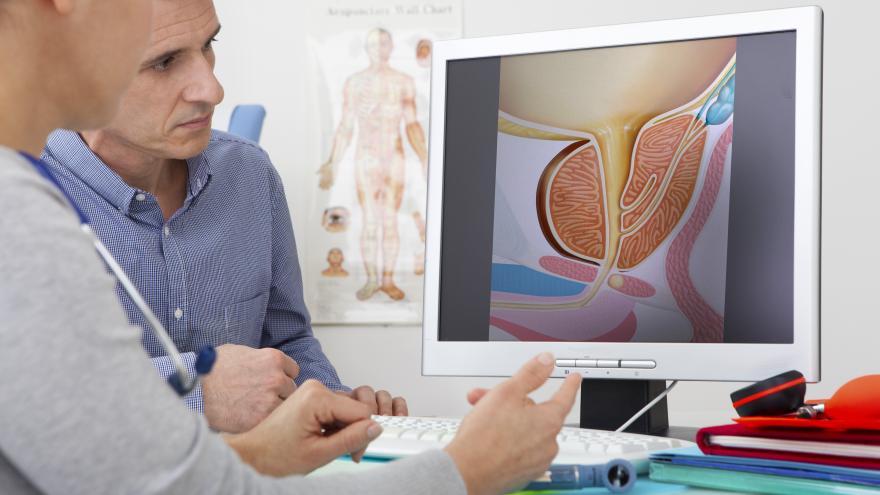 ¿cuánto tiempo puede aparecer el cáncer de próstata reaction