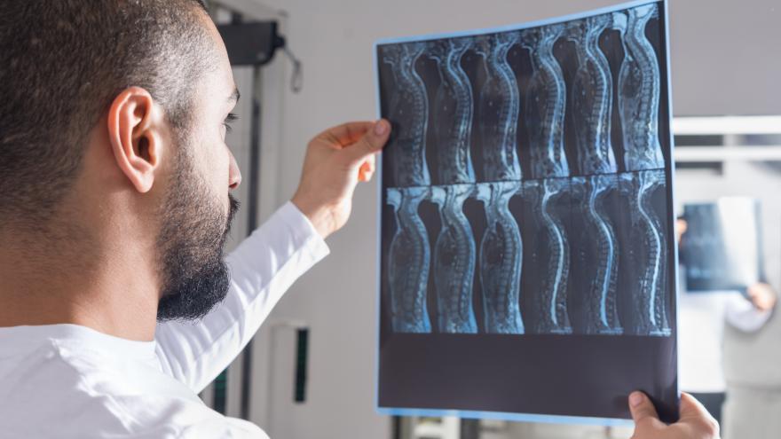 Mirando una radiografía