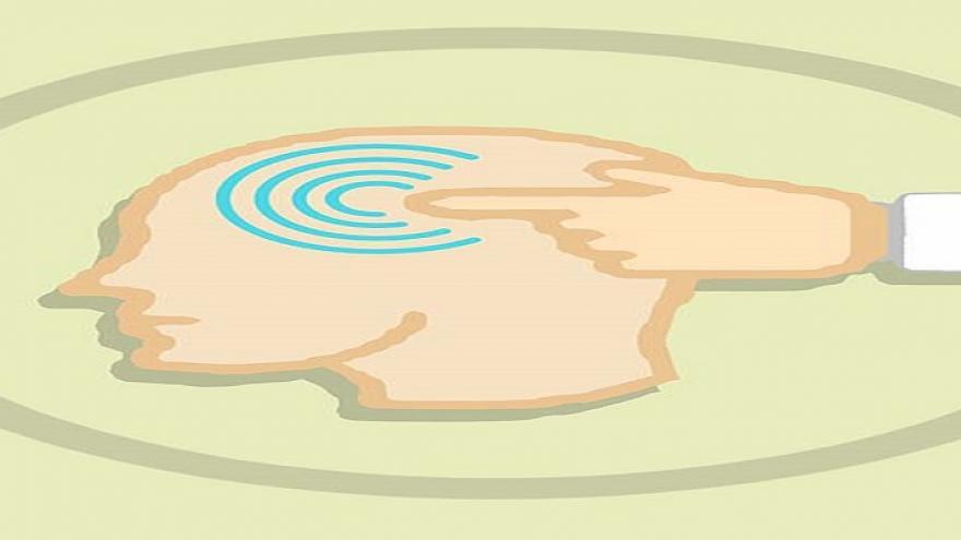 Dibujo de una cabeza con un punto señalado con curvas azules