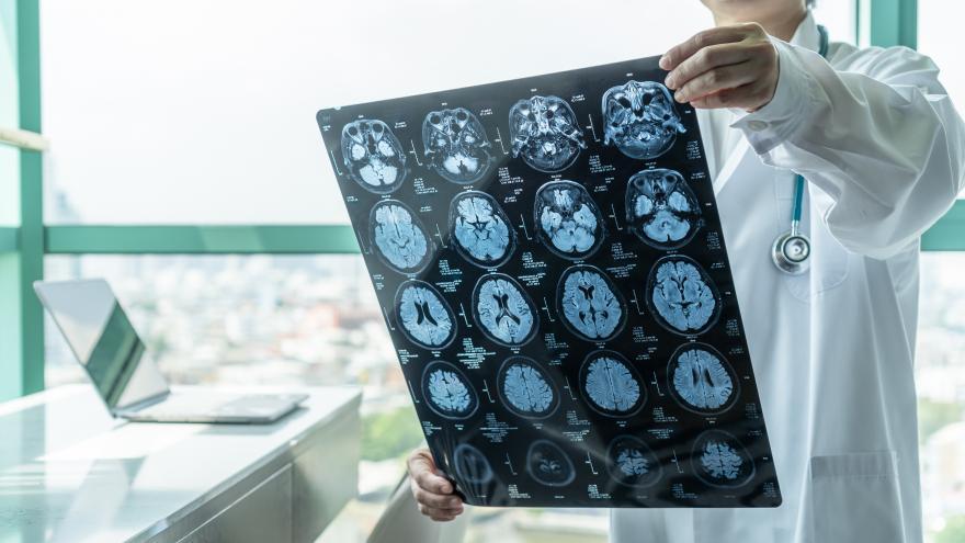 Medico observando una resonancia magnética cerebral