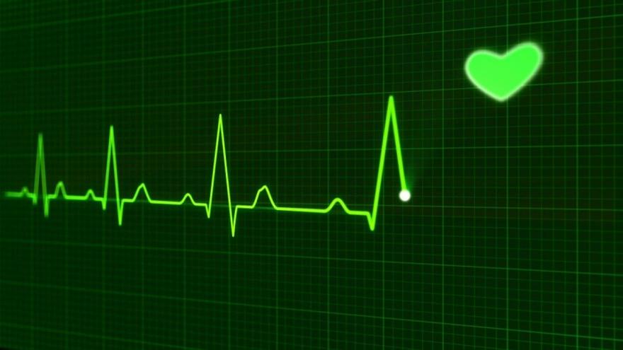 Línea de electrocardiograma en color verde con dibujo de corazón