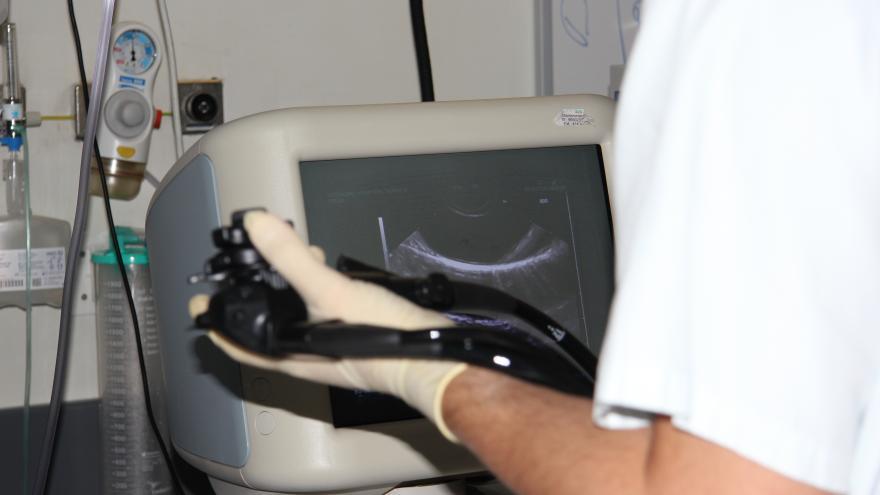 Endoscopio para la realización de la prueba