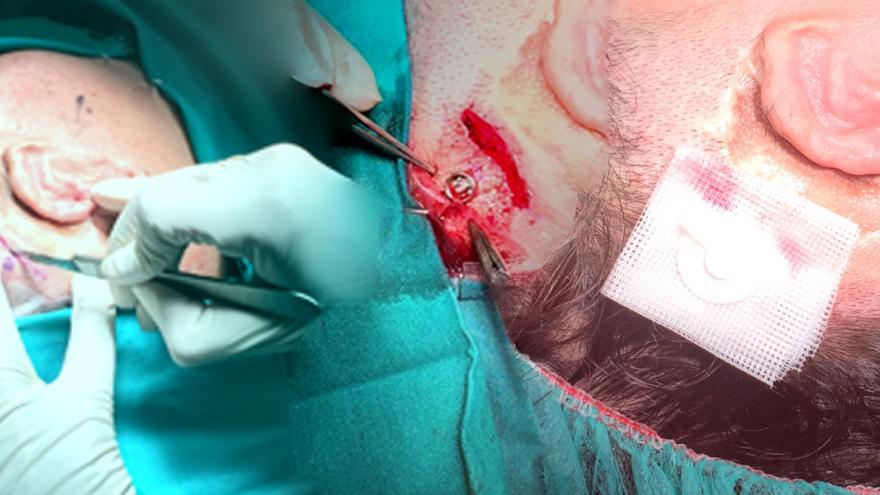 Muestra de todo el proceso hasta la implantación