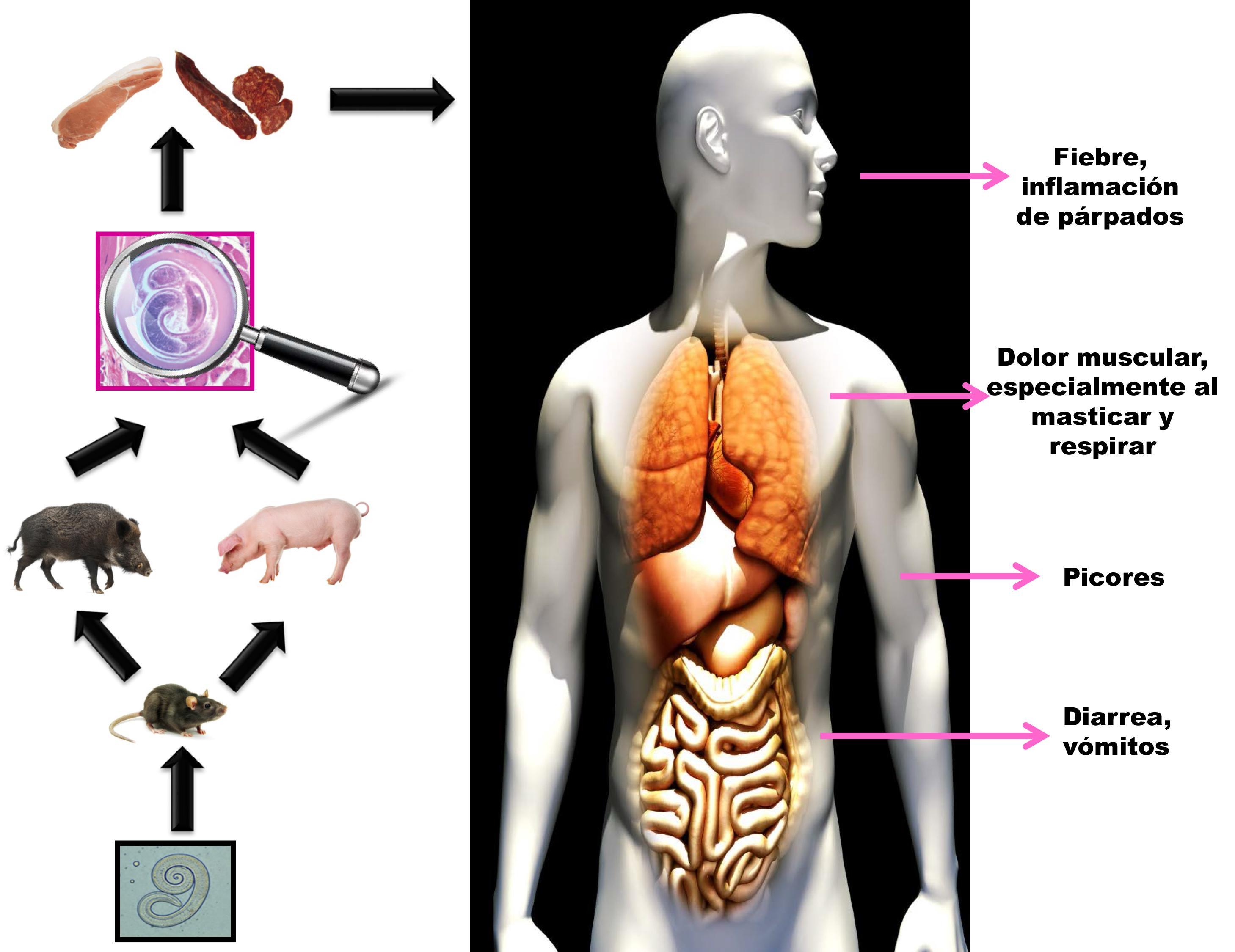 Ciclo de la triquinosis al consumir alimentos contaminados