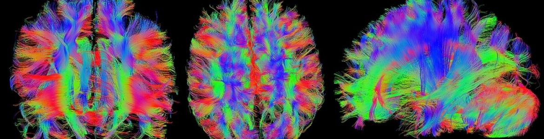 Imagen cerebro