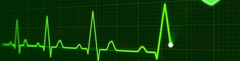 imagen de un electro