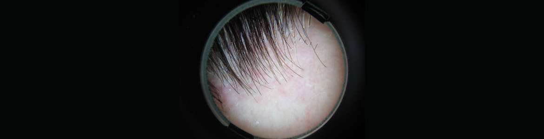 Imagen de una lupa sobre pelo trasplantado