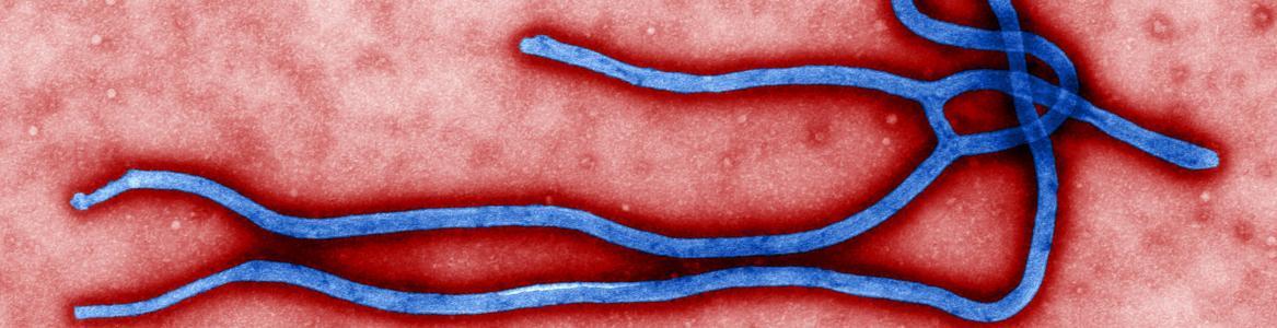 Estructura morfológica del virus ébola