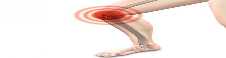 rodilla flexionada con indicadores de dolor
