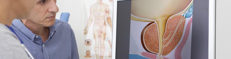 médico y paciente consultando en un ordenador imagen de próstata