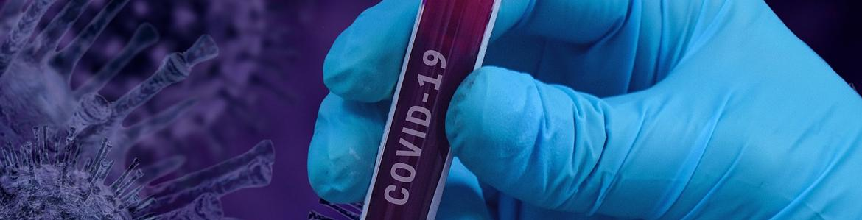 imagen de tubo de ensayo con sangre para análisis COVID-19