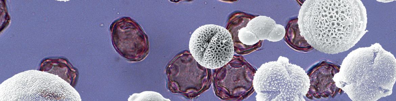 Imagen con varios granos de polen