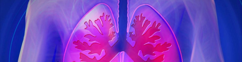 hipertesión arterial pulmonar