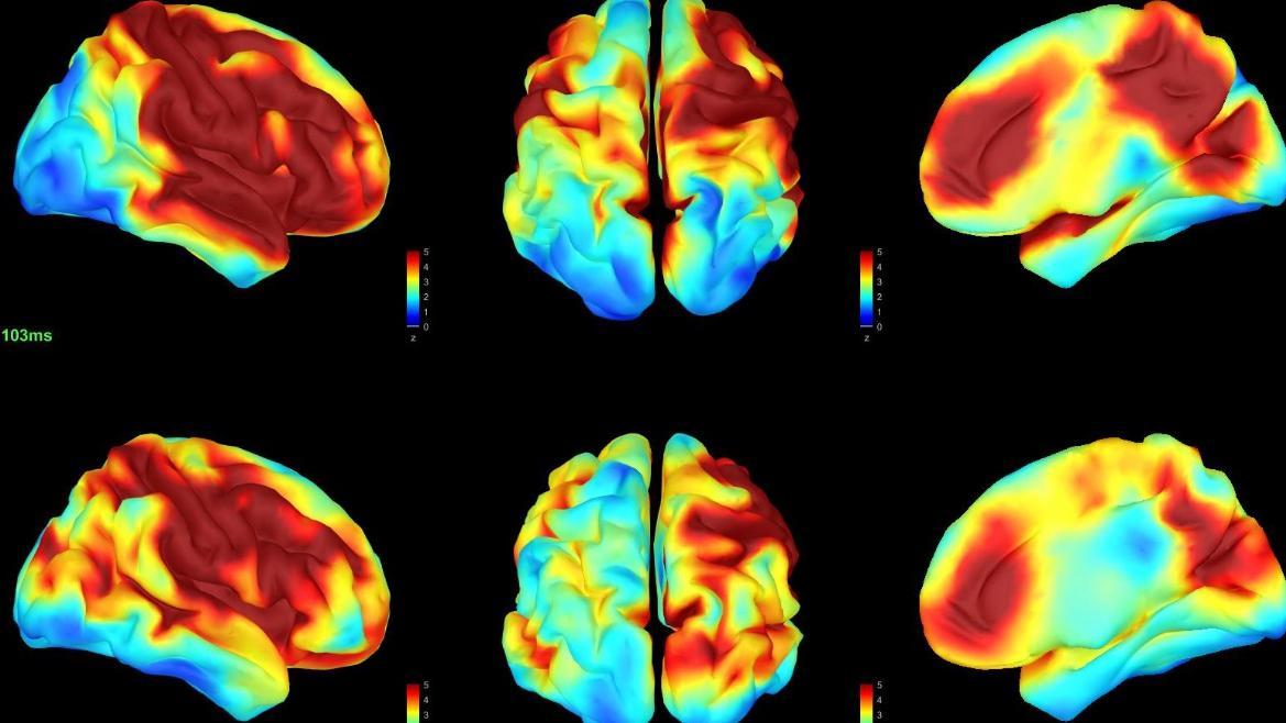 imágenes de cerebros con signos de demencia