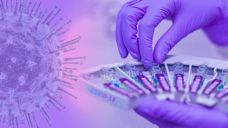 Bandeja con muestras de coronavirus