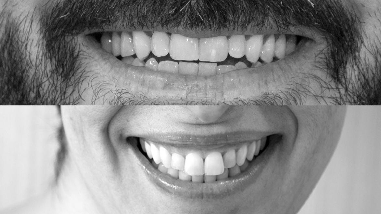 Sonrisas de pacientes de salud mental