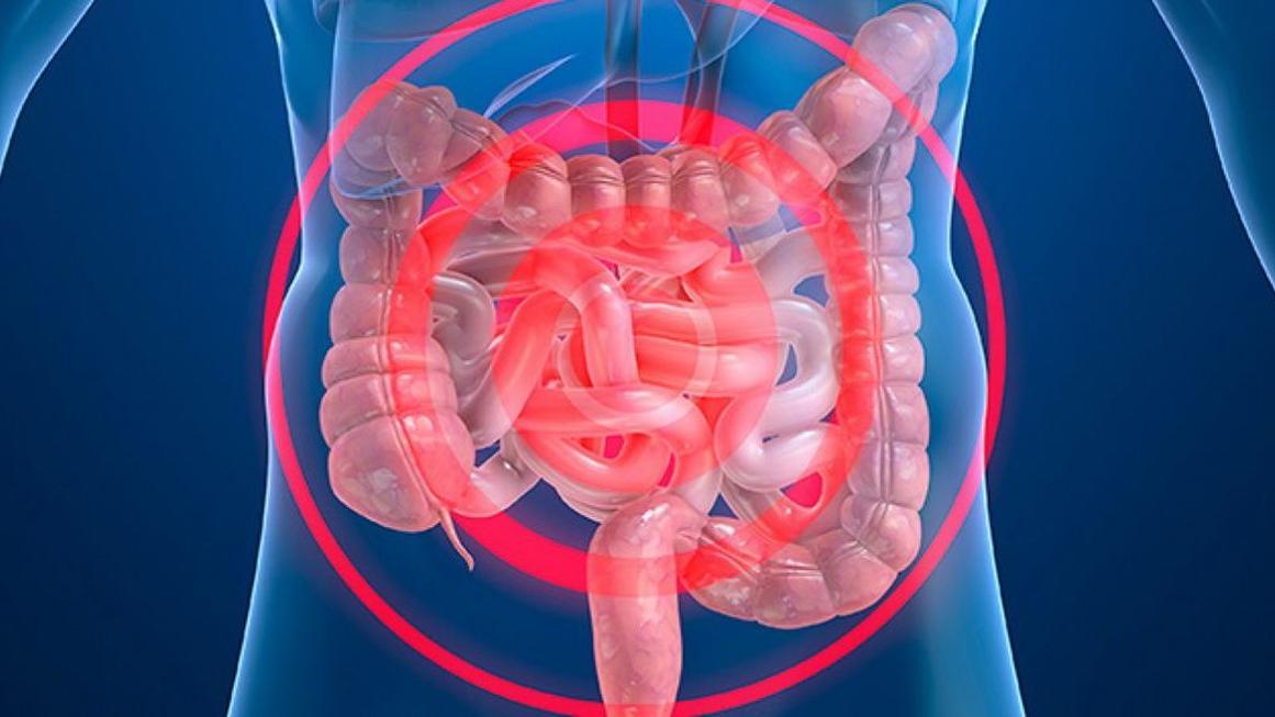 Resultado de imagen para enfermedad intestinal