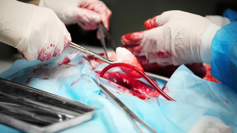 Operación de trasplante de órganos