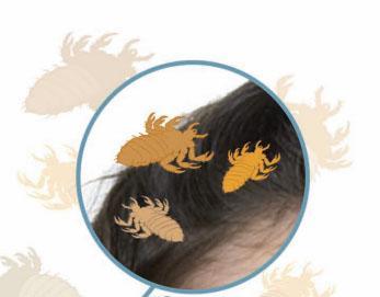 dibujo de piojos sobre el cabello